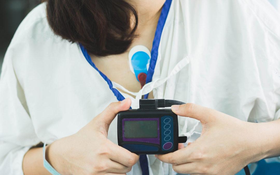 Qué es un Holter y qué función tiene